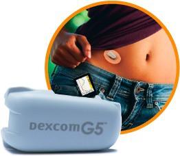 Senzor Dexcom G5 Mobile/G4 Platinum